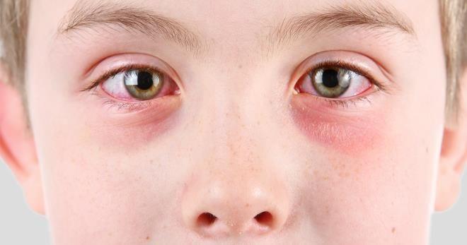 Покраснение слизистой и кожи глаз