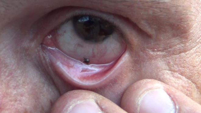 Инородное тело глаза