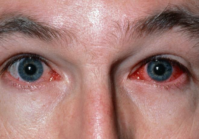 Краснота глаз
