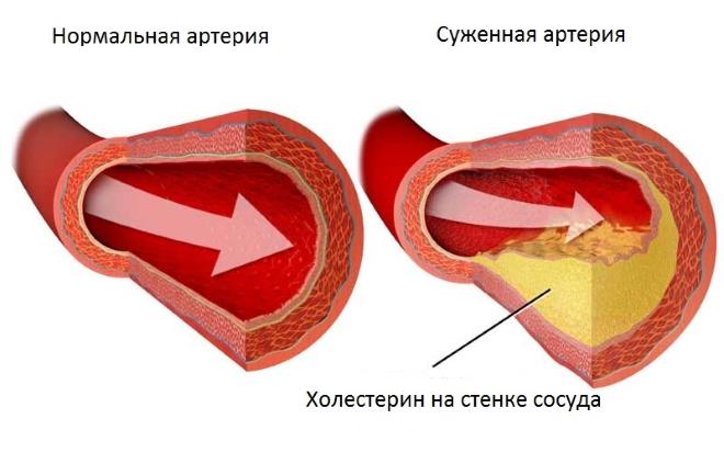 Холестериновые отложения