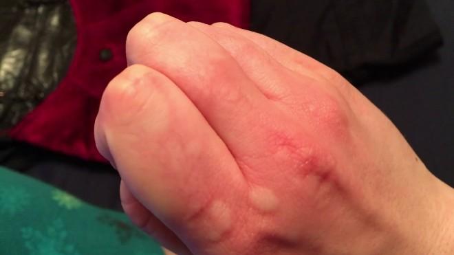 Аллергия на руках, пальцах, ладонях и кистях: способы лечения