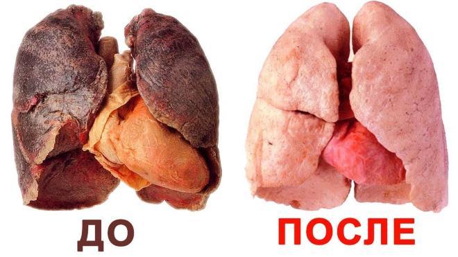 Легкие без курения