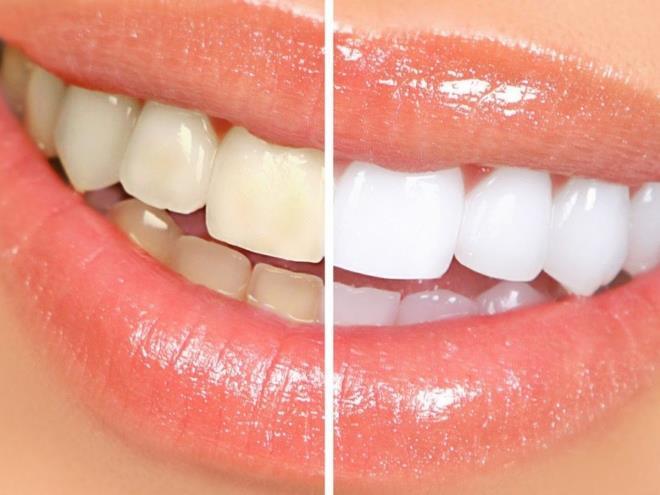 Очищение зубов от налета