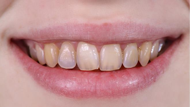 Истончение зубной эмали