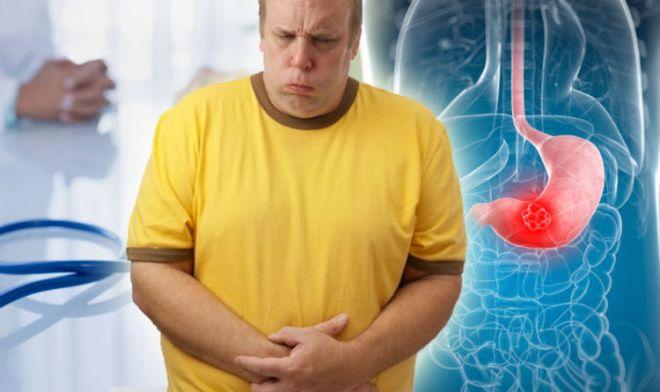 Несварение желудка (диспепсия)