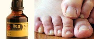 Помогает ли лечение грибка ногтей на ногах йодом