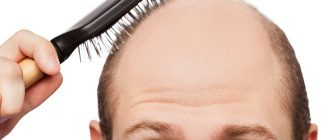 Почему люди лысеют?