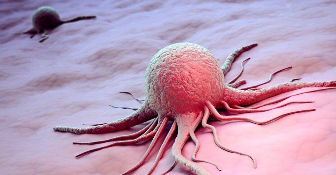 Причины появления рака - риск заболевания есть почти у каждого