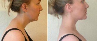Как избавиться от вдовьего горба на шее женщине