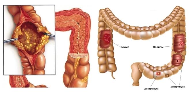 Лечение травами желудочно-кишечного тракта