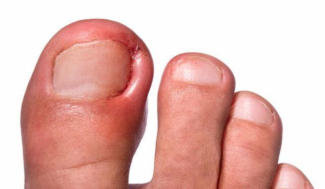 Причины, симптомы и лечение вросшего ногтя на большом пальце ноги