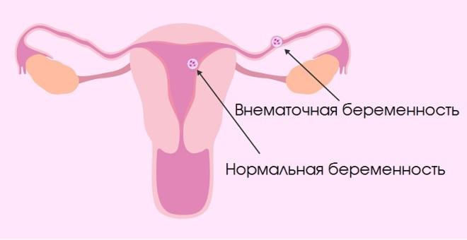 С какого срока тест на беременность показывает точный результат