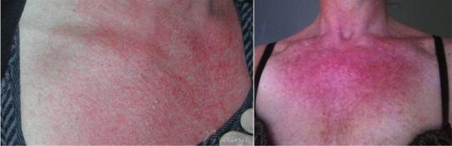 Симптомы и лечение аллергии на солнце у взрослых