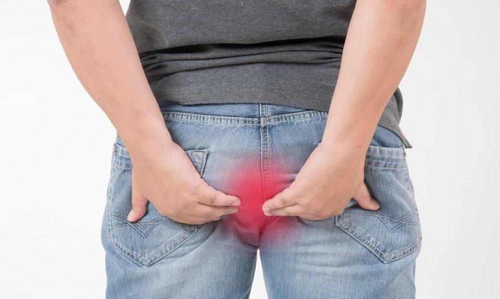 Геморрой у мужчин - очень деликатная проблема