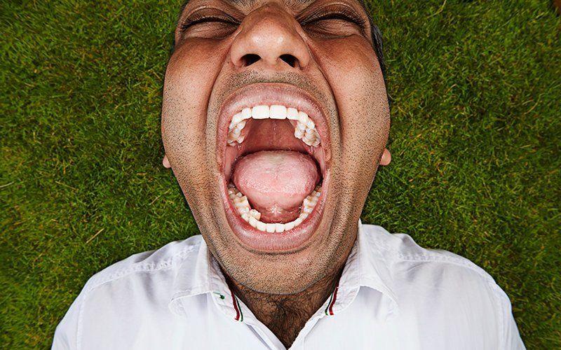 Почему нормой является 28, 32, 36 зубов? Кто самые зубастые люди в мире?