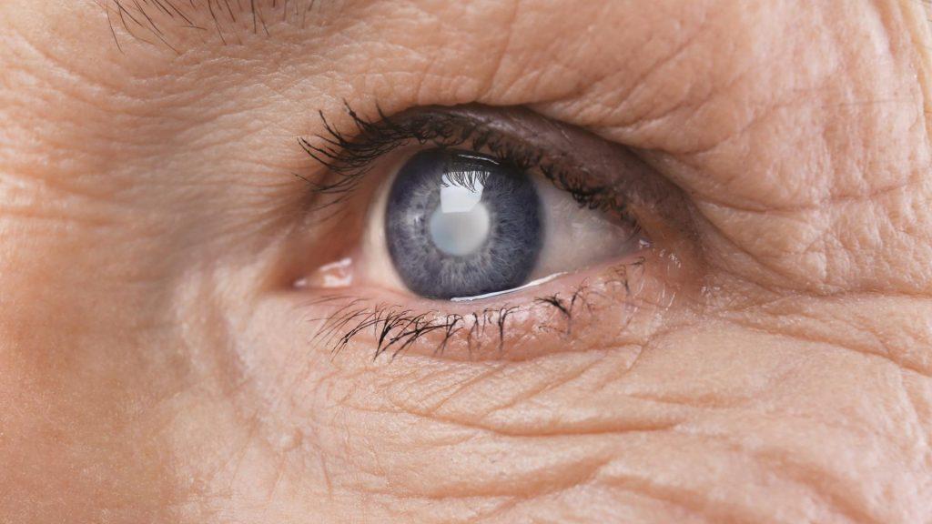Народные средства профилактики катаракты, которая приходит с возрастом