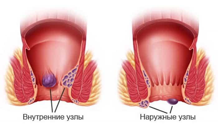 Геморрой не всегда сопровождается кровотечением