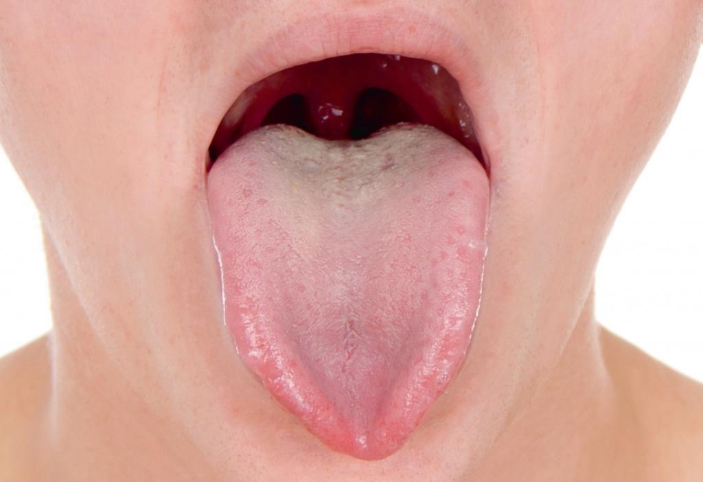 О чем сигнализирует раздутый язык