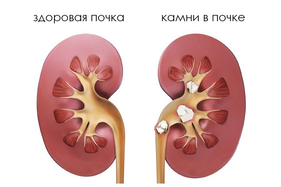 уролог что лечит: мочекаменная болезнь