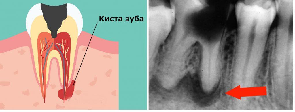 Встаете, и темнеет в глазах – есть повод проверить зубы