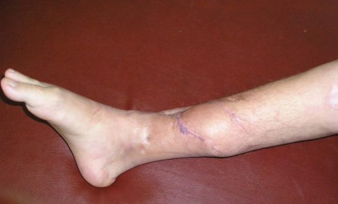 Что такое остеомиелит: симптомы и лечение хронической и острой формы