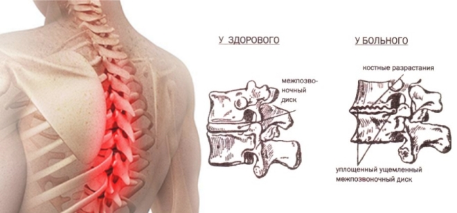 Остеохондроз грудного отдела позвоночника: симптомы и лечение заболевания