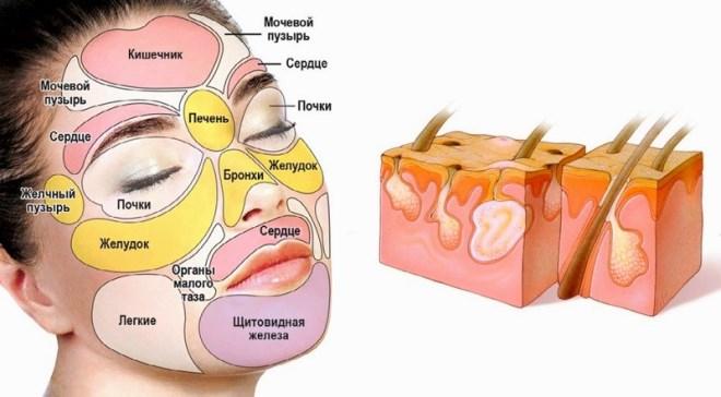 Прыщ на носу: причины у женщин и мужчин
