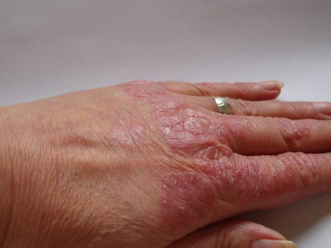Тминное масло: лечебные свойства и противопоказания