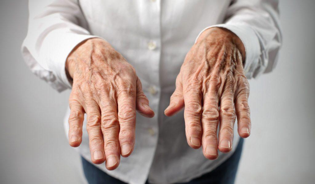 После 60 лет начали трястись руки