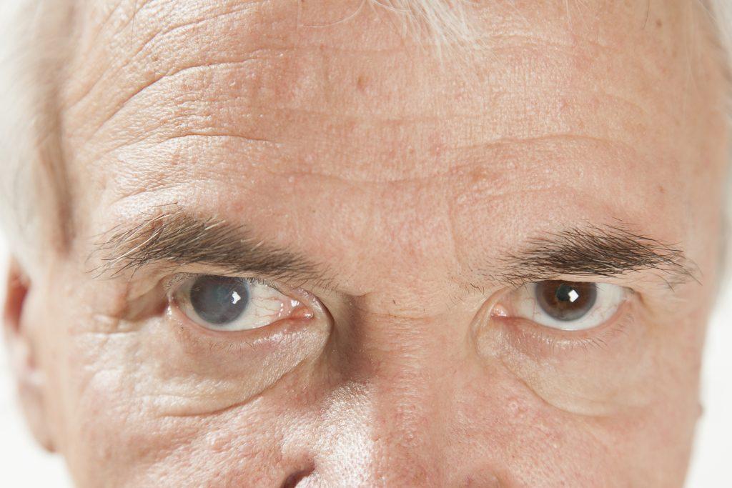 В каком возрасте развивается катаракта глаза и почему это болезнь пожилых