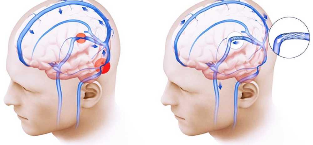 Чем опасна головная и глазная боль одновременно