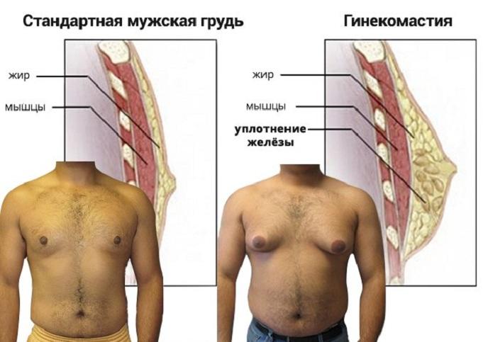Мужчины также страдают от рака груди