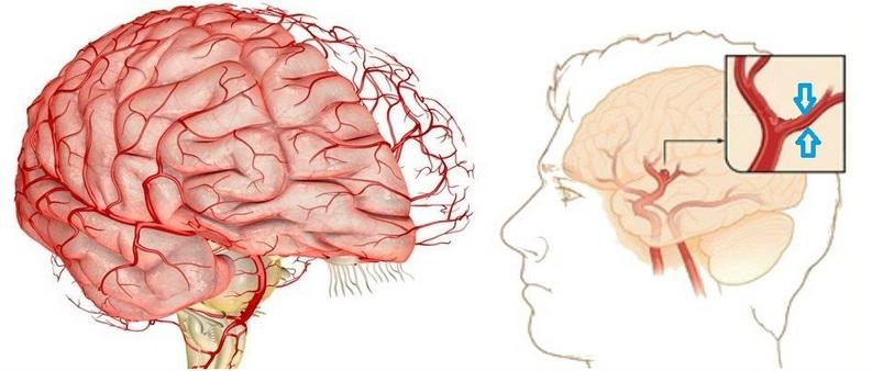 При болях в голове – мозг не болит