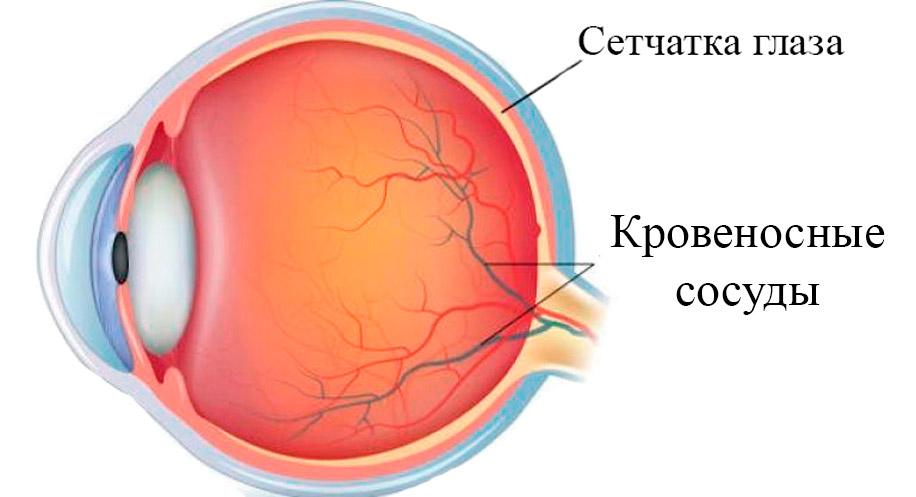 Потеря зрения при повышенном давлении