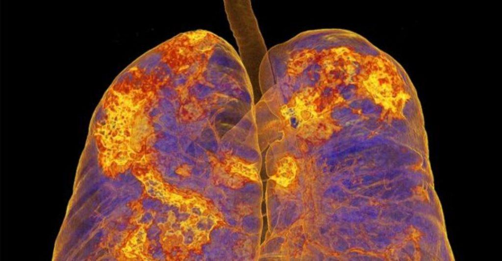 У вылечившихся от коронавируса плохо работают лёгкие