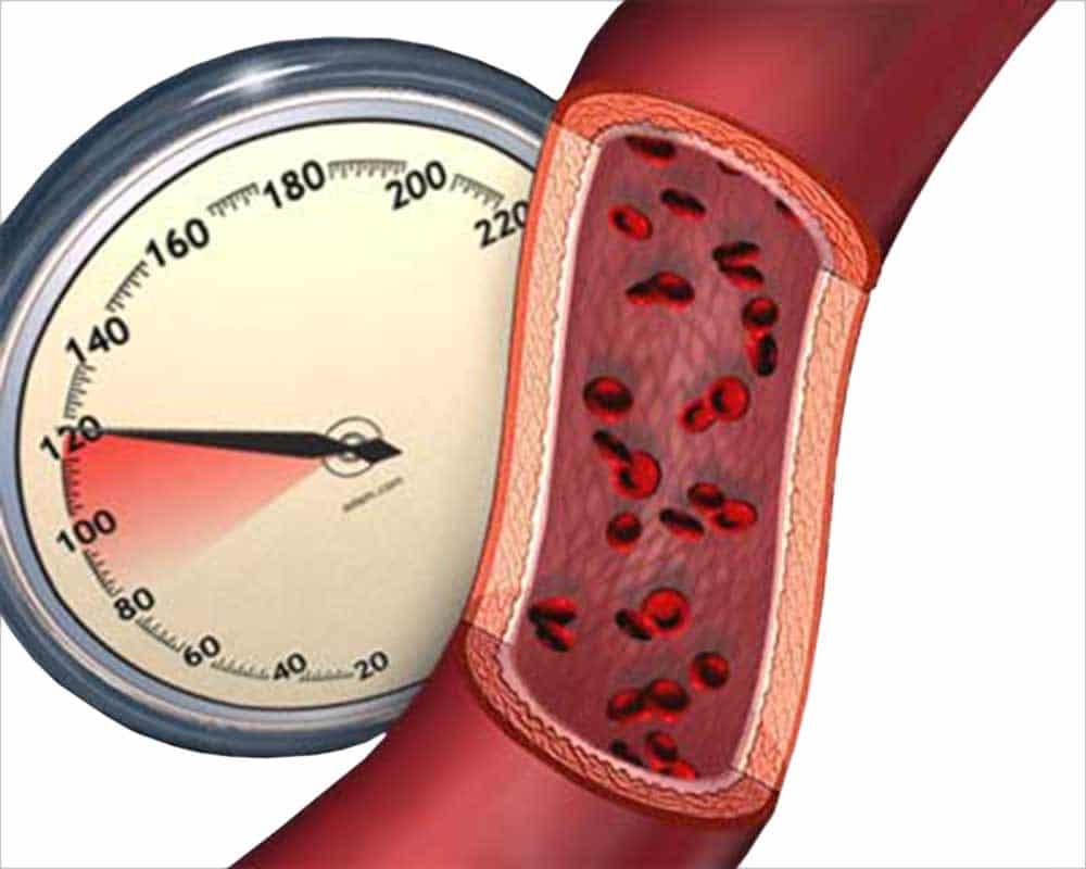 Зимой артериальное давление выше, чем летом
